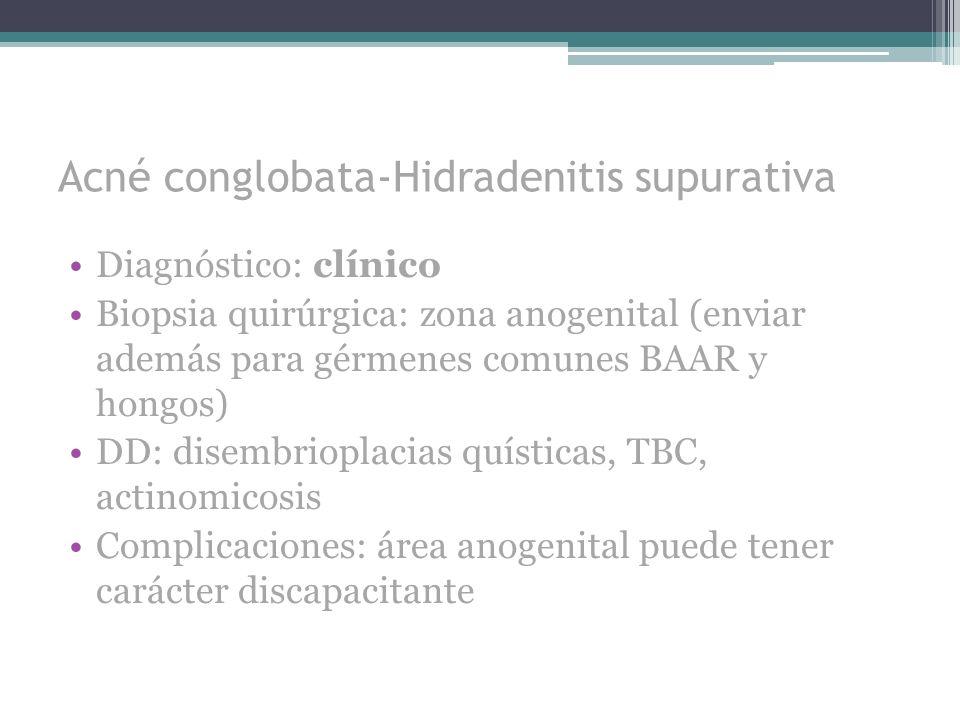 Acné conglobata-Hidradenitis supurativa Diagnóstico: clínico Biopsia quirúrgica: zona anogenital (enviar además para gérmenes comunes BAAR y hongos) D