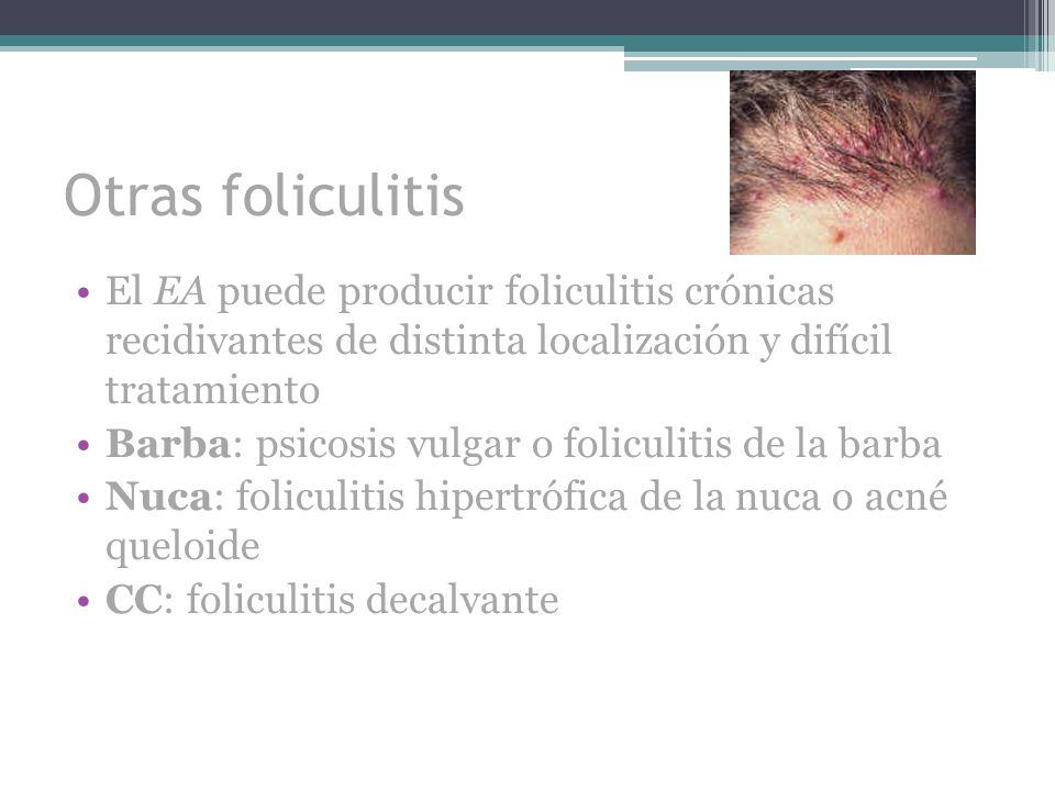 Otras foliculitis El EA puede producir foliculitis crónicas recidivantes de distinta localización y difícil tratamiento Barba: psicosis vulgar o folic