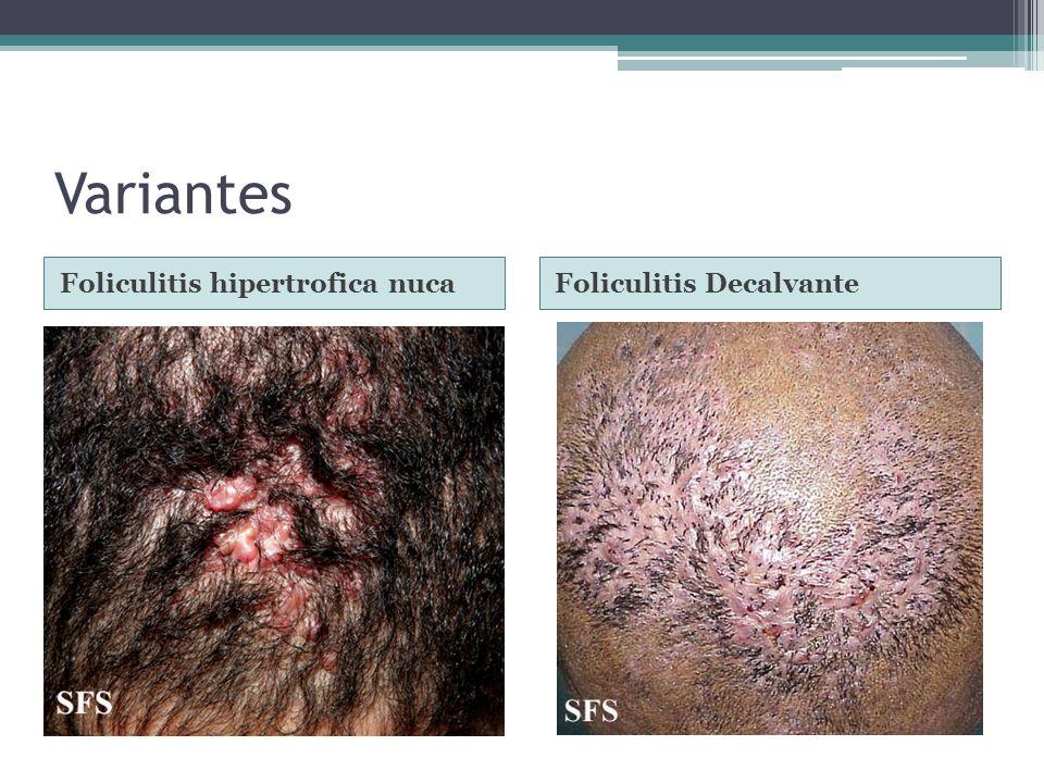 Variantes Foliculitis hipertrofica nucaFoliculitis Decalvante