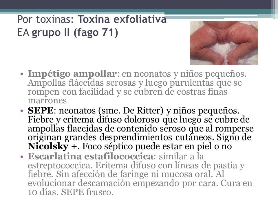 Por toxinas: Toxina exfoliativa EA grupo II (fago 71) Impétigo ampollar: en neonatos y niños pequeños. Ampollas fláccidas serosas y luego purulentas q