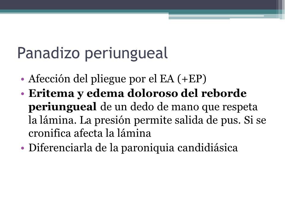 Panadizo periungueal Afección del pliegue por el EA (+EP) Eritema y edema doloroso del reborde periungueal de un dedo de mano que respeta la lámina. L