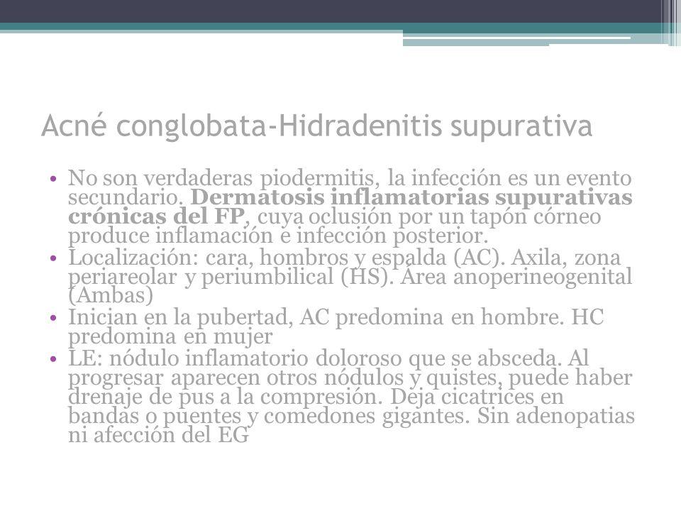 Acné conglobata-Hidradenitis supurativa No son verdaderas piodermitis, la infección es un evento secundario. Dermatosis inflamatorias supurativas crón