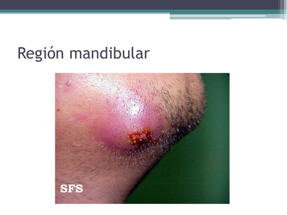 Región mandibular
