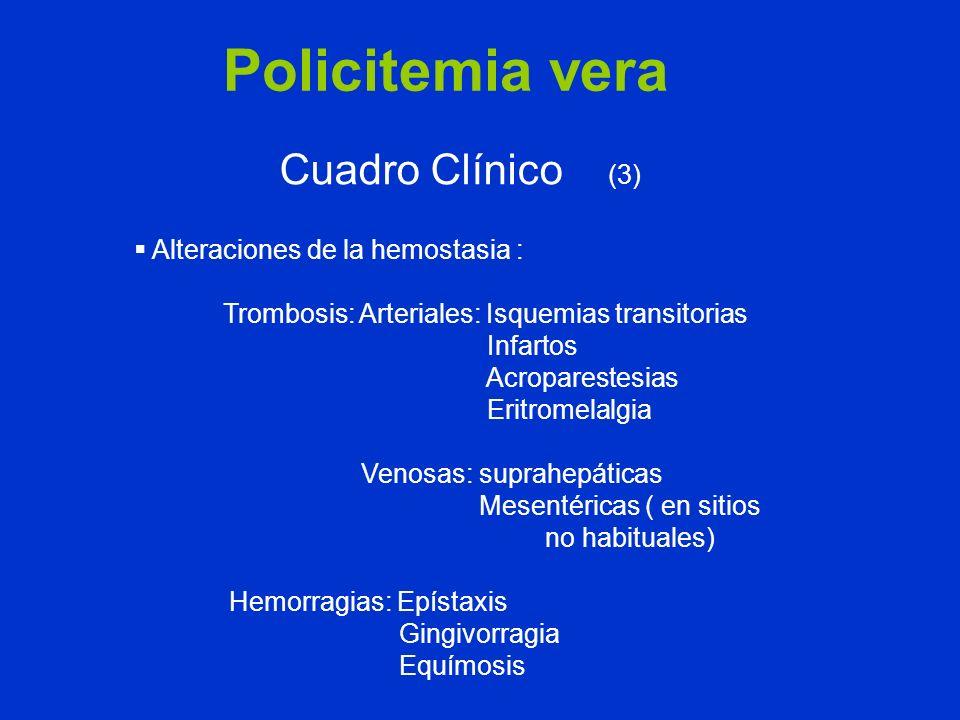 Policitemia vera Cuadro Clínico (3) Alteraciones de la hemostasia : Trombosis: Arteriales: Isquemias transitorias Infartos Acroparestesias Eritromelal