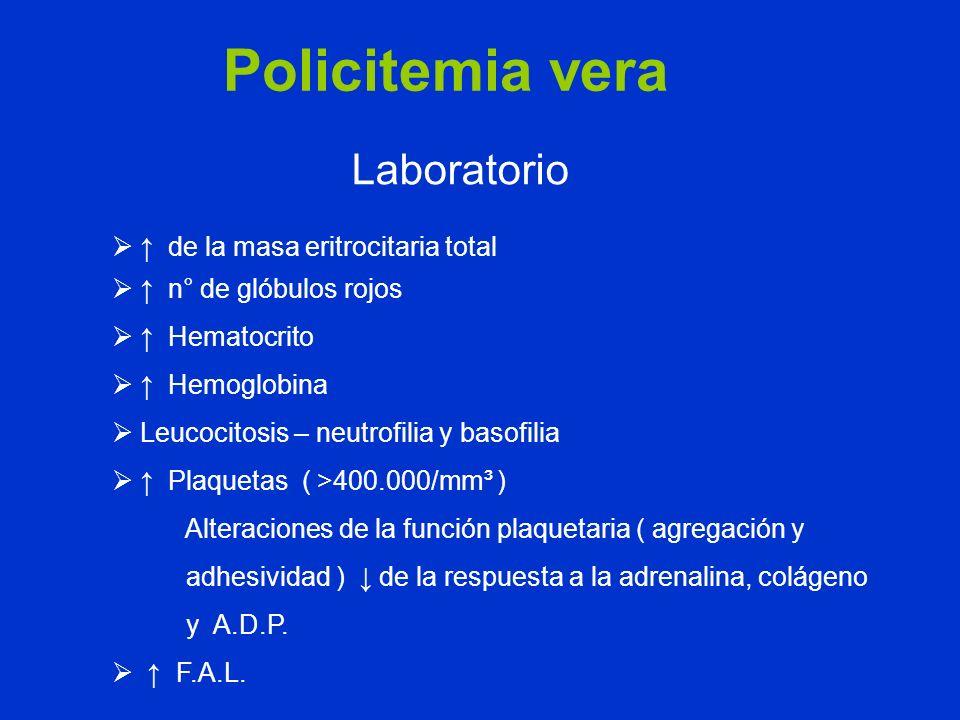 Policitemia vera Laboratorio de la masa eritrocitaria total n° de glóbulos rojos Hematocrito Hemoglobina Leucocitosis – neutrofilia y basofilia Plaque