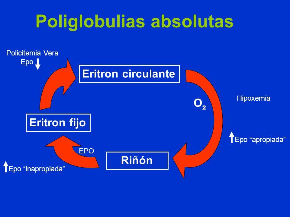 Poliglobulias absolutas Eritron circulante Riñón Eritron fijo O ² Hipoxemia Epo apropiada EPO Epo inapropiada Policitemia Vera Epo