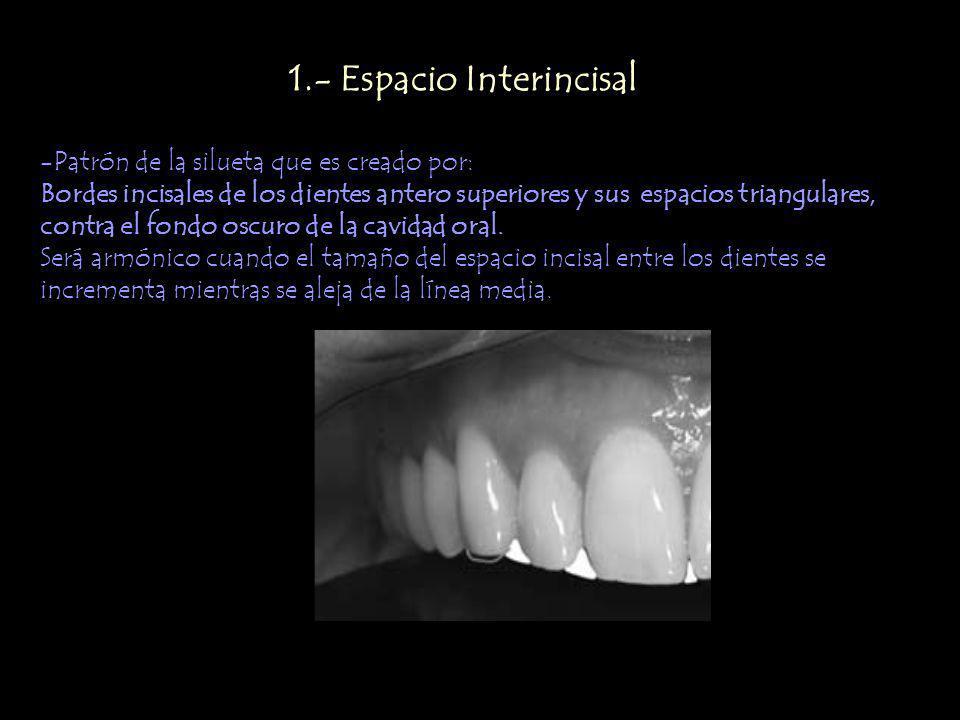 1.- Espacio Interincisal -Patrón de la silueta que es creado por: Bordes incisales de los dientes antero superiores y sus espacios triangulares, contra el fondo oscuro de la cavidad oral.