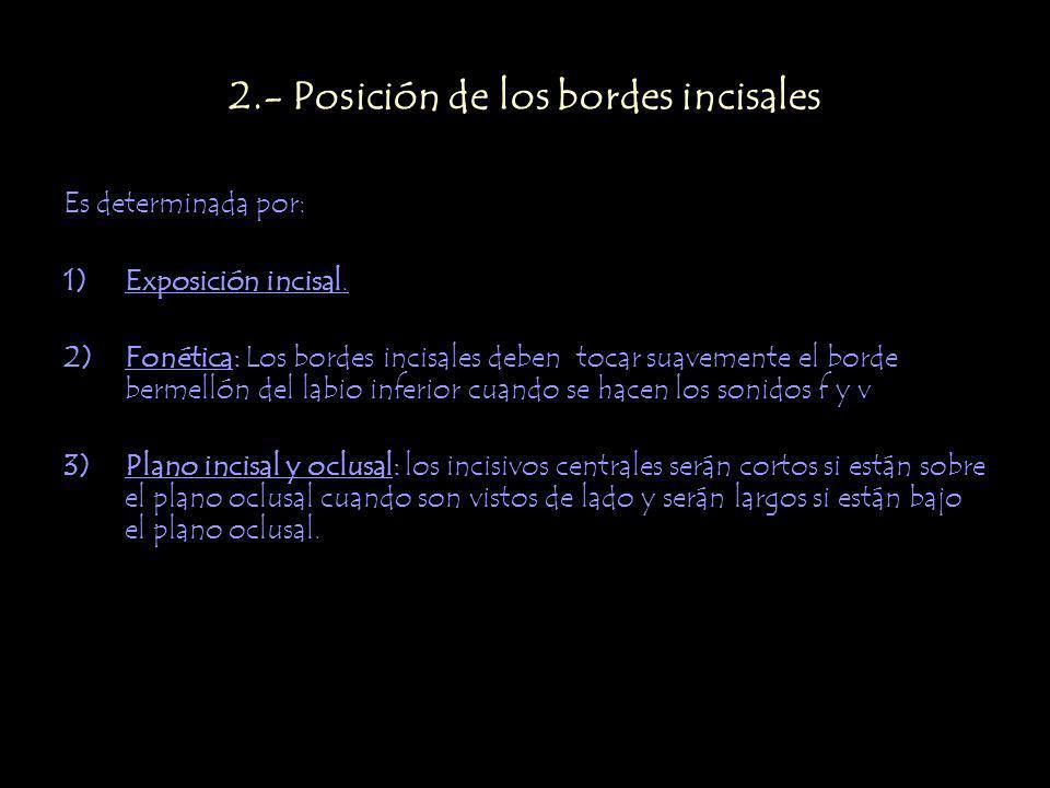 2.- Posición de los bordes incisales Es determinada por: 1)Exposición incisal.