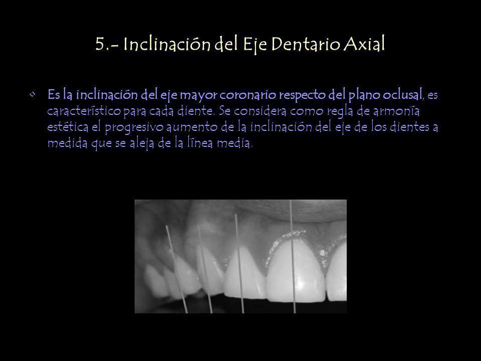 5.- Inclinación del Eje Dentario Axial Es la inclinación del eje mayor coronario respecto del plano oclusal, es característico para cada diente. Se co