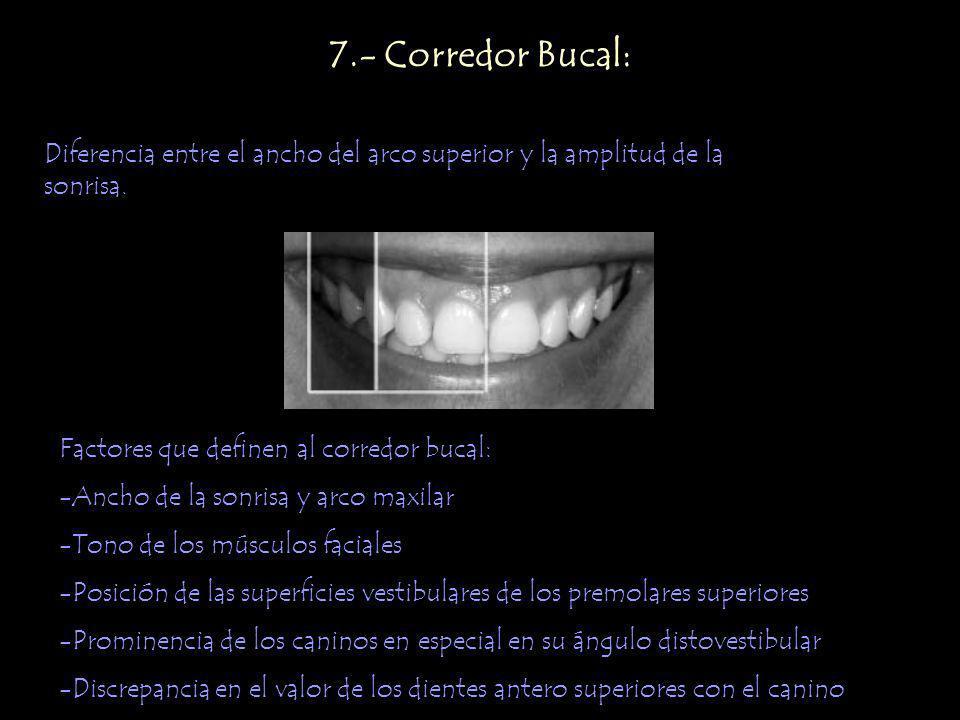 7.- Corredor Bucal: Diferencia entre el ancho del arco superior y la amplitud de la sonrisa. Factores que definen al corredor bucal: -Ancho de la sonr