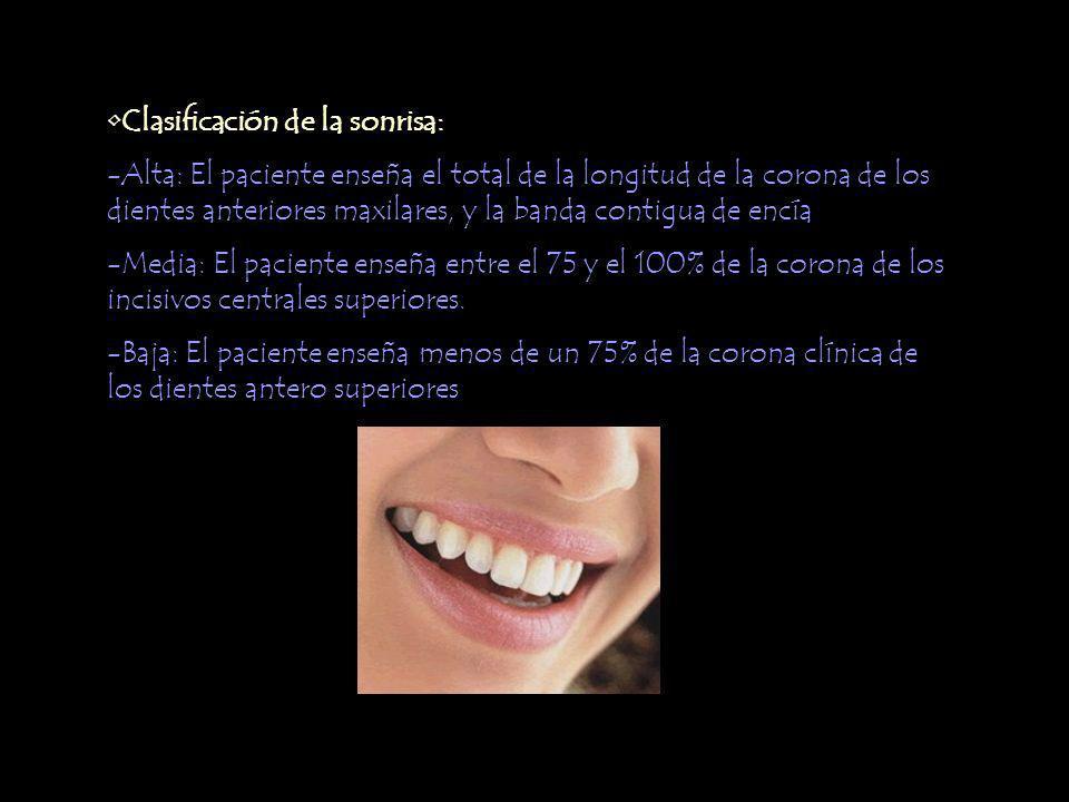 Clasificación de la sonrisa: -Alta: El paciente enseña el total de la longitud de la corona de los dientes anteriores maxilares, y la banda contigua de encía -Media: El paciente enseña entre el 75 y el 100% de la corona de los incisivos centrales superiores.