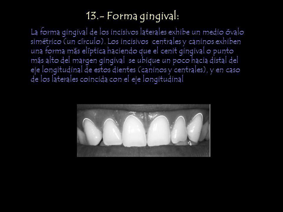 13.- Forma gingival: La forma gingival de los incisivos laterales exhibe un medio óvalo simétrico (un círculo). Los incisivos centrales y caninos exhi