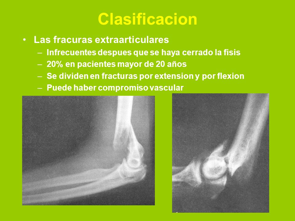 Clasificacion Las fracuras extraarticulares –Infrecuentes despues que se haya cerrado la fisis –20% en pacientes mayor de 20 años –Se dividen en fracturas por extension y por flexion –Puede haber compromiso vascular