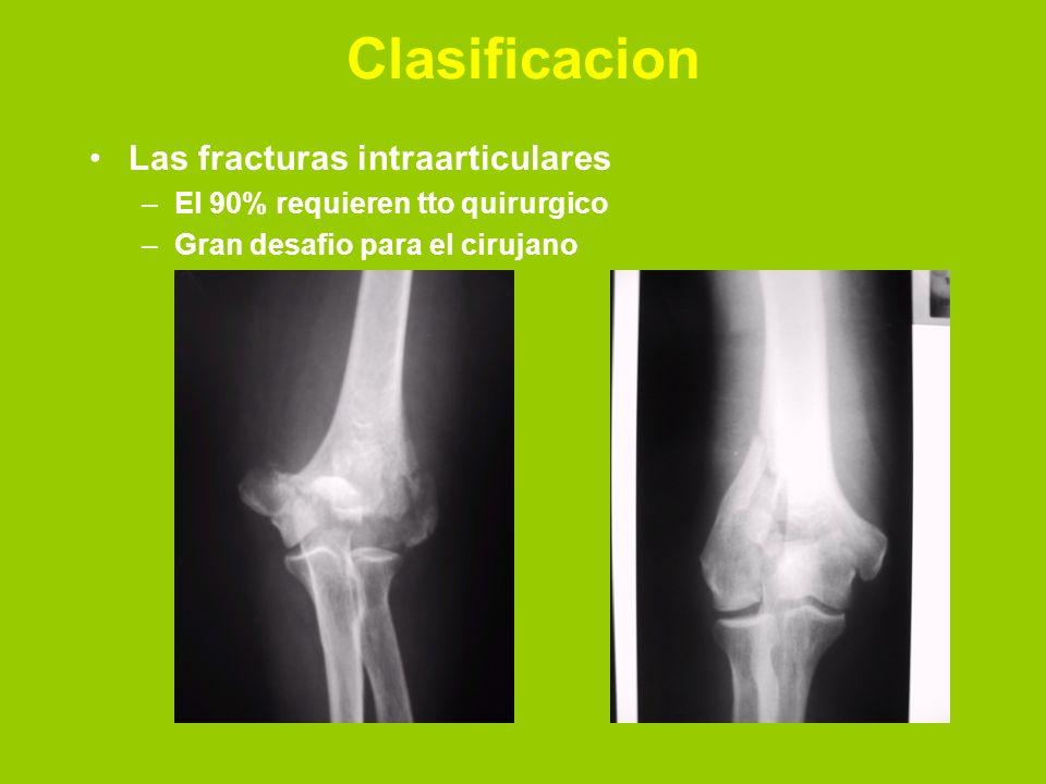 Clasificacion Las fracturas intraarticulares –El 90% requieren tto quirurgico –Gran desafio para el cirujano
