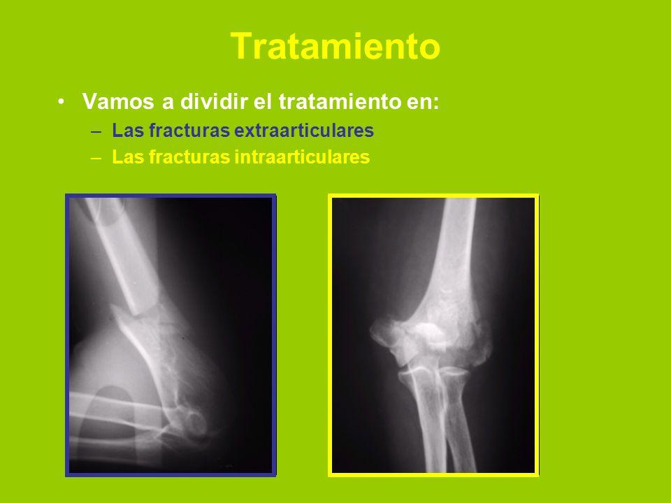 Tratamiento Vamos a dividir el tratamiento en: –Las fracturas extraarticulares –Las fracturas intraarticulares