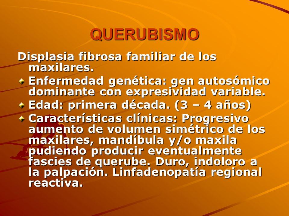 QUERUBISMO Displasia fibrosa familiar de los maxilares. Enfermedad genética: gen autosómico dominante con expresividad variable. Edad: primera década.