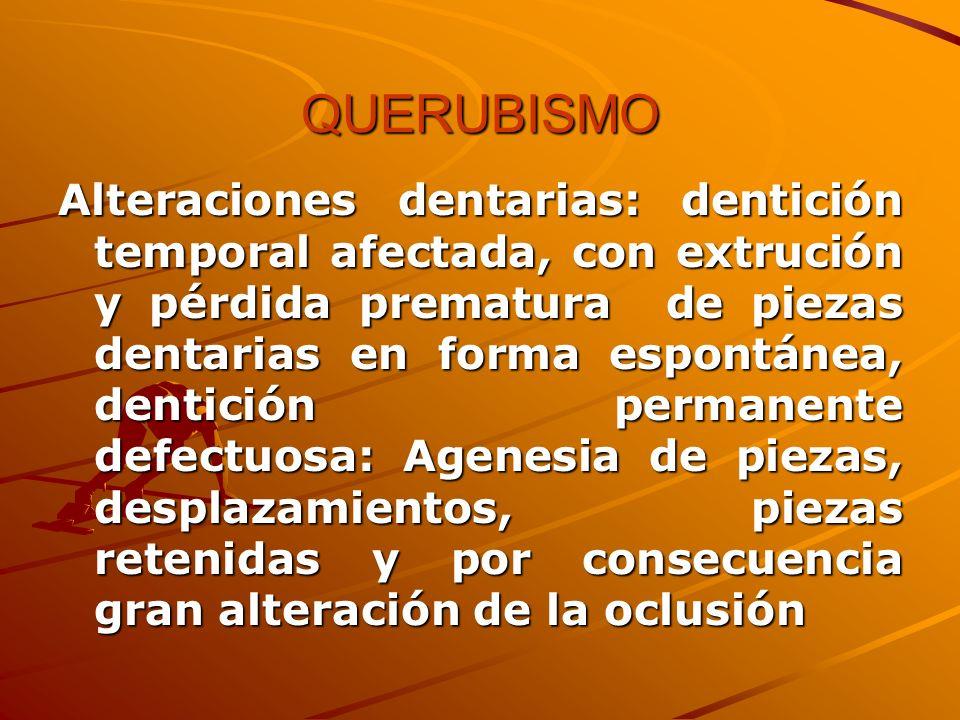 QUERUBISMO Alteraciones dentarias: dentición temporal afectada, con extrución y pérdida prematura de piezas dentarias en forma espontánea, dentición p