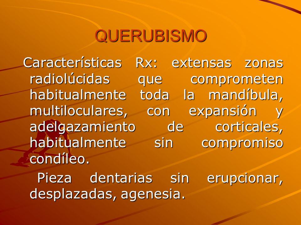 QUERUBISMO Características Rx: extensas zonas radiolúcidas que comprometen habitualmente toda la mandíbula, multiloculares, con expansión y adelgazami