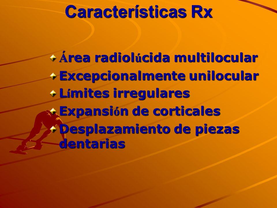 Características Rx Á rea radiol ú cida multilocular Excepcionalmente unilocular L í mites irregulares Expansi ó n de corticales Desplazamiento de piez