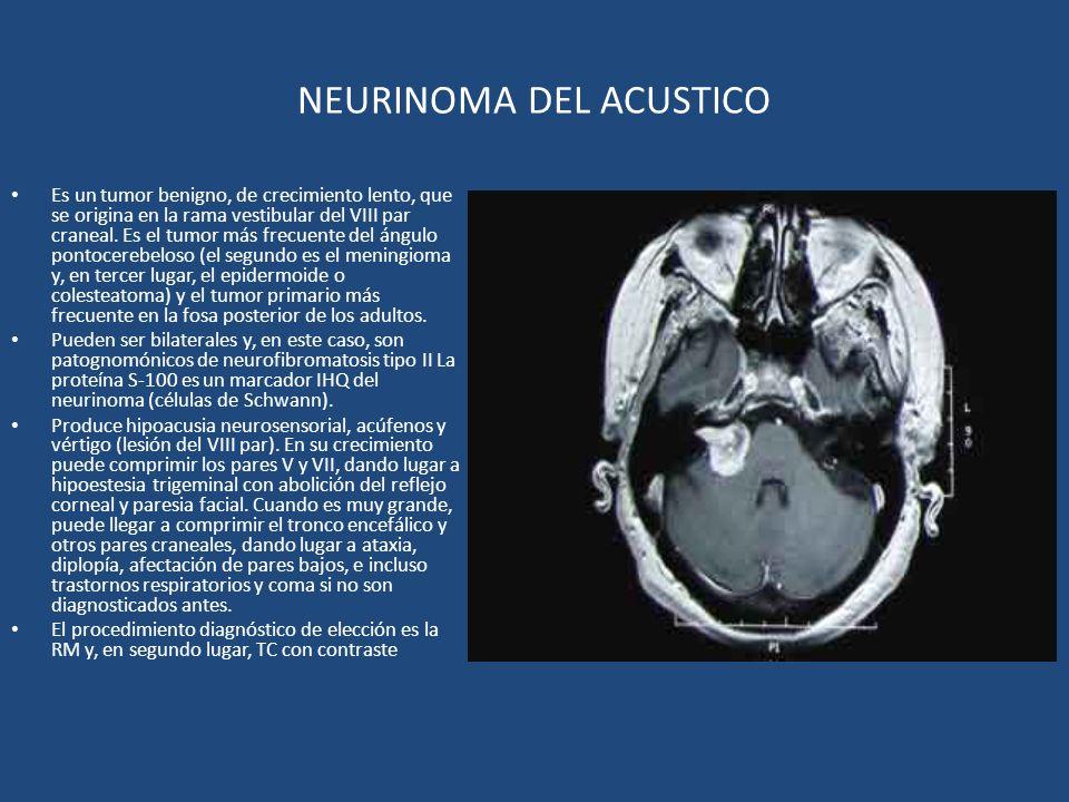 NEURINOMA DEL ACUSTICO Es un tumor benigno, de crecimiento lento, que se origina en la rama vestibular del VIII par craneal. Es el tumor más frecuente