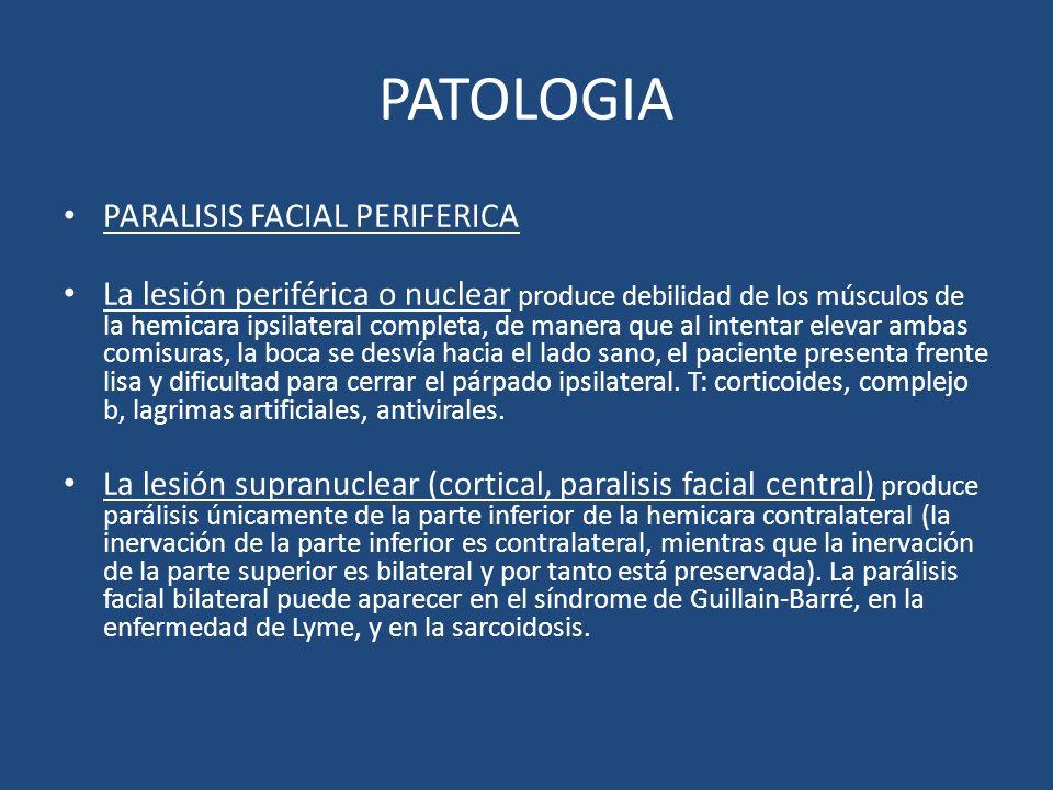 PATOLOGIA PARALISIS FACIAL PERIFERICA La lesión periférica o nuclear produce debilidad de los músculos de la hemicara ipsilateral completa, de manera