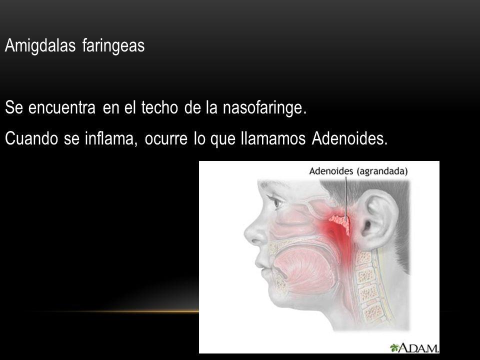 Amigdalas faringeas Se encuentra en el techo de la nasofaringe. Cuando se inflama, ocurre lo que llamamos Adenoides.
