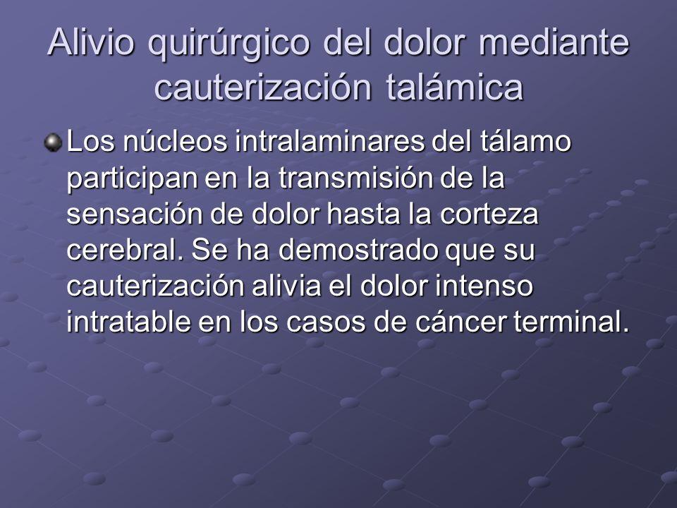 Alivio quirúrgico del dolor mediante cauterización talámica Los núcleos intralaminares del tálamo participan en la transmisión de la sensación de dolo