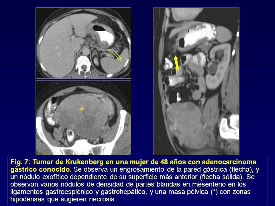 Fig. 7: Tumor de Krukenberg en una mujer de 48 años con adenocarcinoma gástrico conocido. Se observa un engrosamiento de la pared gástrica (flecha), y