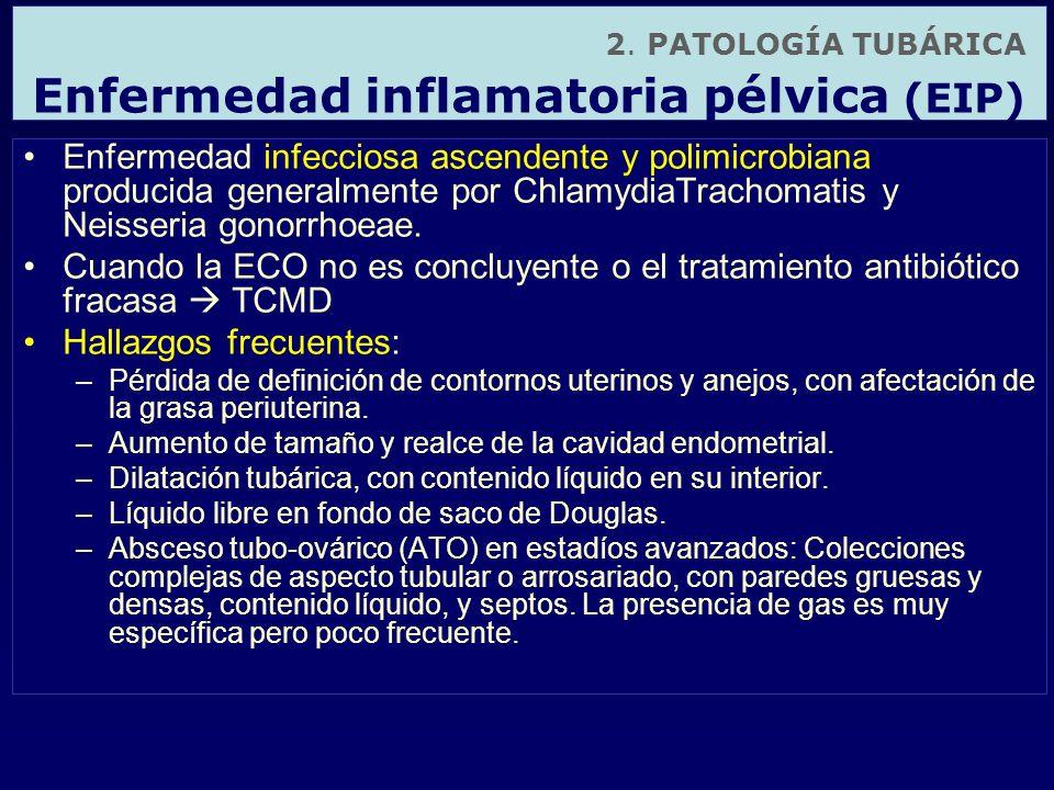2. PATOLOGÍA TUBÁRICA Enfermedad inflamatoria pélvica (EIP) Enfermedad infecciosa ascendente y polimicrobiana producida generalmente por ChlamydiaTrac