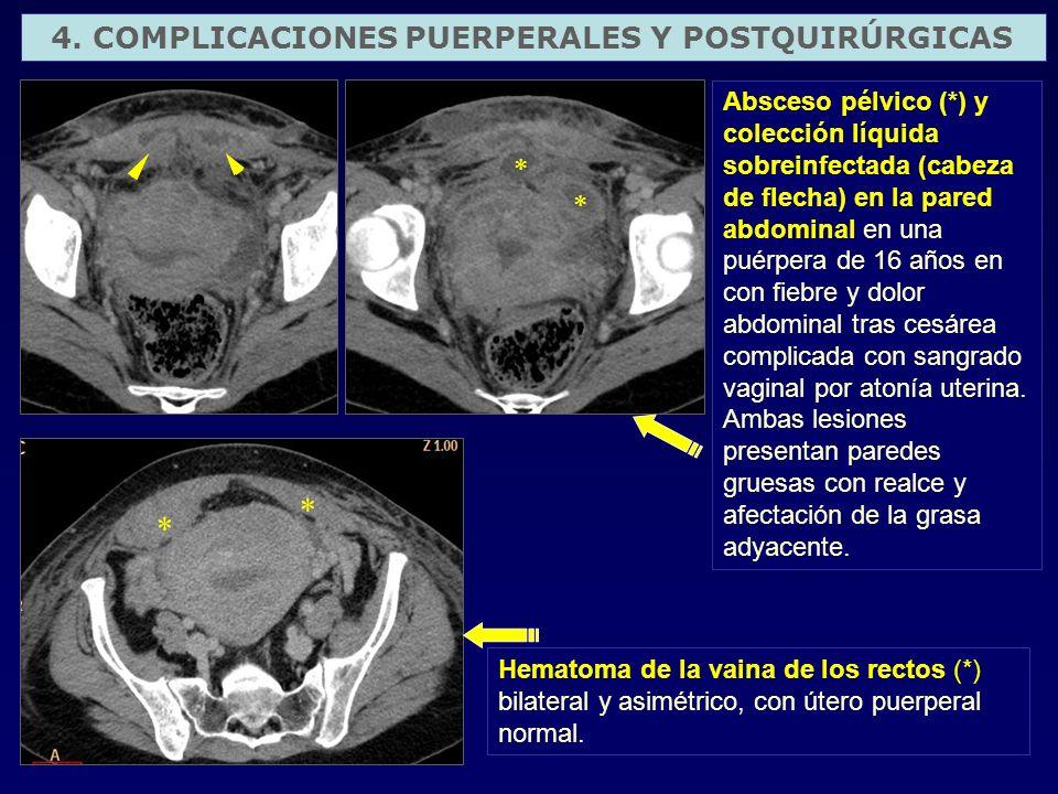 4. COMPLICACIONES PUERPERALES Y POSTQUIRÚRGICAS Absceso pélvico (*) y colección líquida sobreinfectada (cabeza de flecha) en la pared abdominal en una