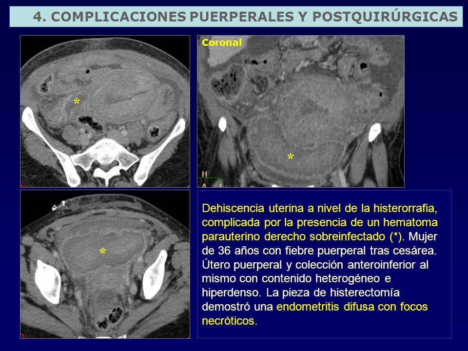 Dehiscencia uterina a nivel de la histerorrafia, complicada por la presencia de un hematoma parauterino derecho sobreinfectado (*). Mujer de 36 años c