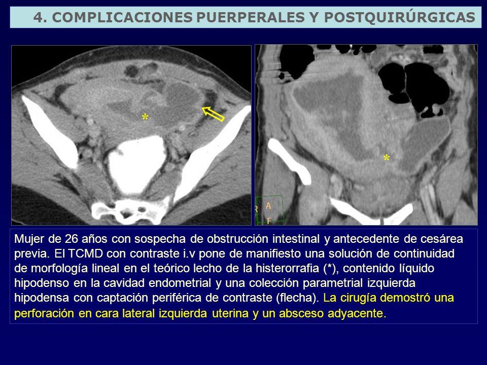 Mujer de 26 años con sospecha de obstrucción intestinal y antecedente de cesárea previa. El TCMD con contraste i.v pone de manifiesto una solución de