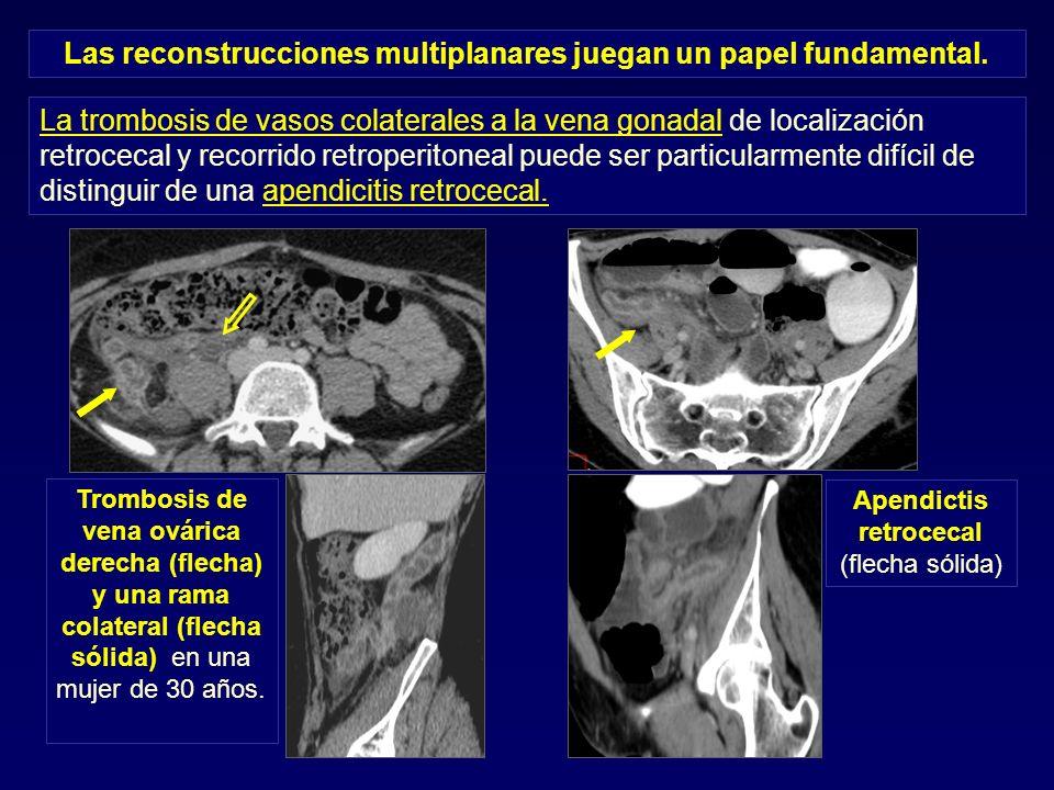 La trombosis de vasos colaterales a la vena gonadal de localización retrocecal y recorrido retroperitoneal puede ser particularmente difícil de distin