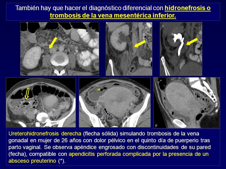 También hay que hacer el diagnóstico diferencial con hidronefrosis o trombosis de la vena mesentérica inferior. Ureterohidronefrosis derecha (flecha s