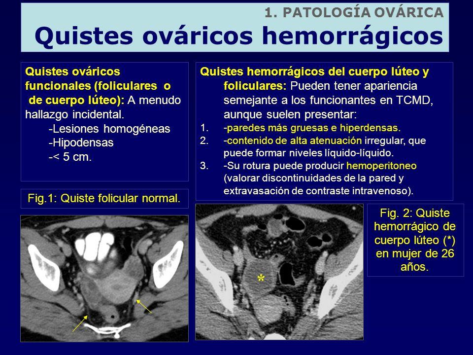 1. PATOLOGÍA OVÁRICA Quistes ováricos hemorrágicos Quistes ováricos funcionales (foliculares o de cuerpo lúteo): A menudo hallazgo incidental. -Lesion