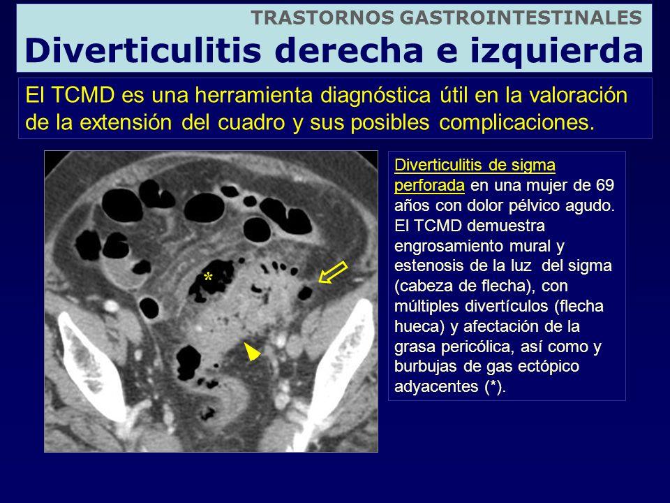 TRASTORNOS GASTROINTESTINALES Diverticulitis derecha e izquierda El TCMD es una herramienta diagnóstica útil en la valoración de la extensión del cuad