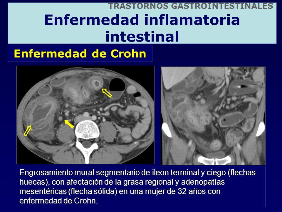 Enfermedad de Crohn Engrosamiento mural segmentario de ileon terminal y ciego (flechas huecas), con afectación de la grasa regional y adenopatías mese