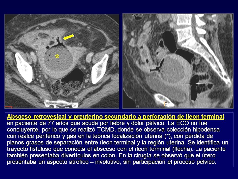 Absceso retrovesical y preuterino secundario a perforación de íleon terminal en paciente de 77 años que acude por fiebre y dolor pélvico. La ECO no fu