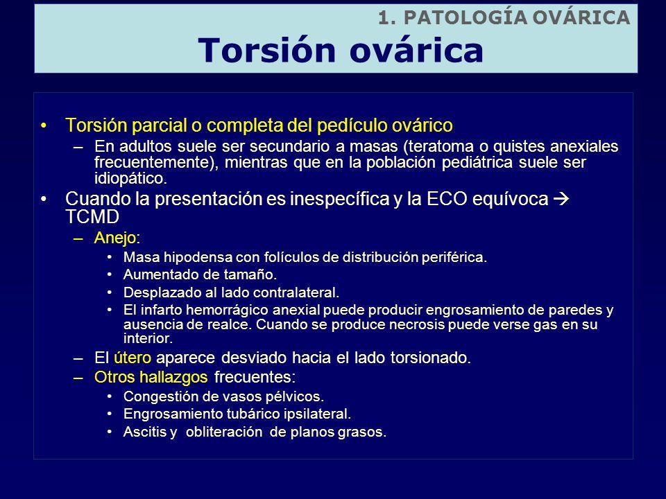 Torsión parcial o completa del pedículo ovárico –En adultos suele ser secundario a masas (teratoma o quistes anexiales frecuentemente), mientras que e