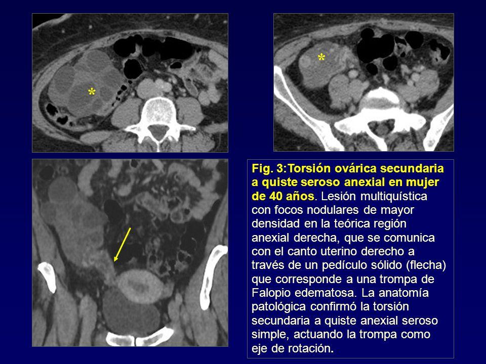 Fig. 3:Torsión ovárica secundaria a quiste seroso anexial en mujer de 40 años. Lesión multiquística con focos nodulares de mayor densidad en la teóric