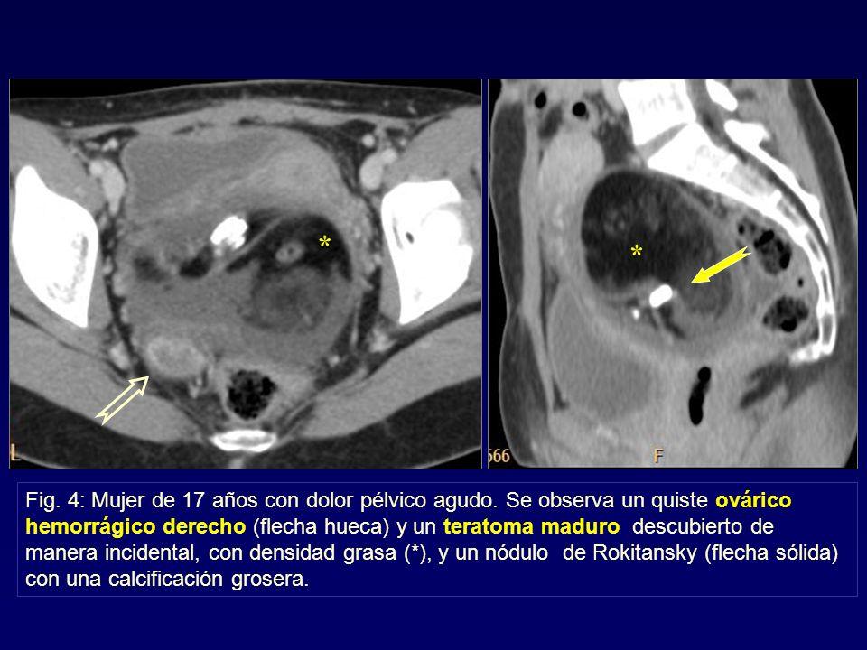 * * Fig. 4: Mujer de 17 años con dolor pélvico agudo. Se observa un quiste ovárico hemorrágico derecho (flecha hueca) y un teratoma maduro descubierto