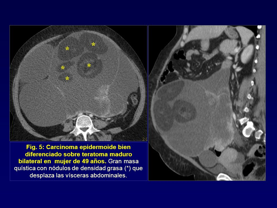 * * * * * Fig. 5: Carcinoma epidermoide bien diferenciado sobre teratoma maduro bilateral en mujer de 49 años. Gran masa quística con nódulos de densi