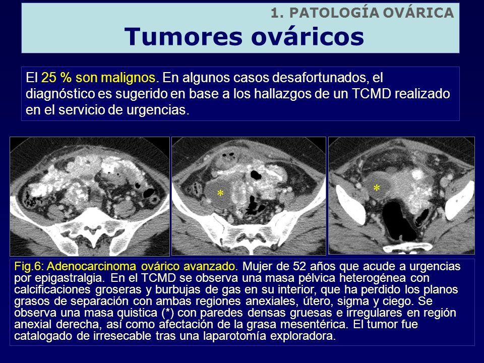 El 25 % son malignos. En algunos casos desafortunados, el diagnóstico es sugerido en base a los hallazgos de un TCMD realizado en el servicio de urgen