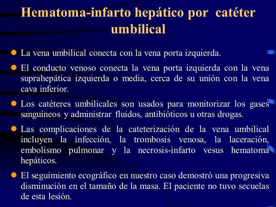 Hematoma-infarto hepático por catéter umbilical La vena umbilical conecta con la vena porta izquierda. El conducto venoso conecta la vena porta izquie