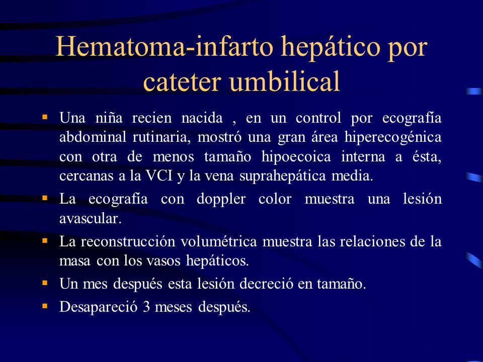 Hematoma-infarto hepático por cateter umbilical Una niña recien nacida, en un control por ecografía abdominal rutinaria, mostró una gran área hipereco