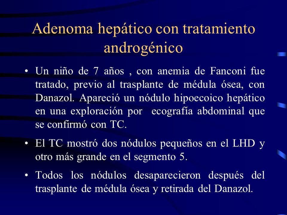 Adenoma hepático con tratamiento androgénico Un niño de 7 años, con anemia de Fanconi fue tratado, previo al trasplante de médula ósea, con Danazol. A