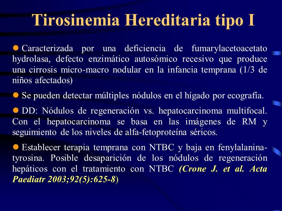 Tirosinemia Hereditaria tipo I Caracterizada por una deficiencia de fumarylacetoacetato hydrolasa, defecto enzimático autosómico recesivo que produce