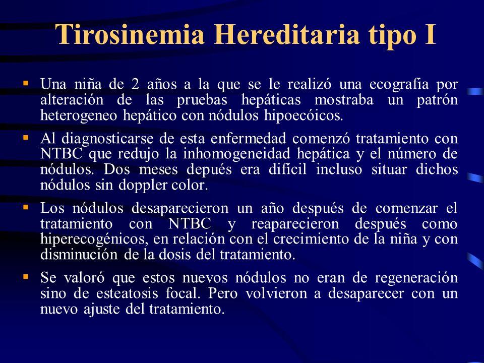 Una niña de 2 años a la que se le realizó una ecografia por alteración de las pruebas hepáticas mostraba un patrón heterogeneo hepático con nódulos hi