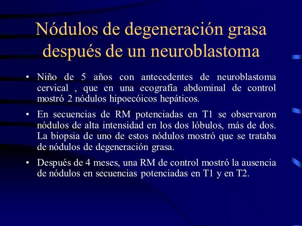 Nódulos de degeneración grasa después de un neuroblastoma Niño de 5 años con antecedentes de neuroblastoma cervical, que en una ecografía abdominal de