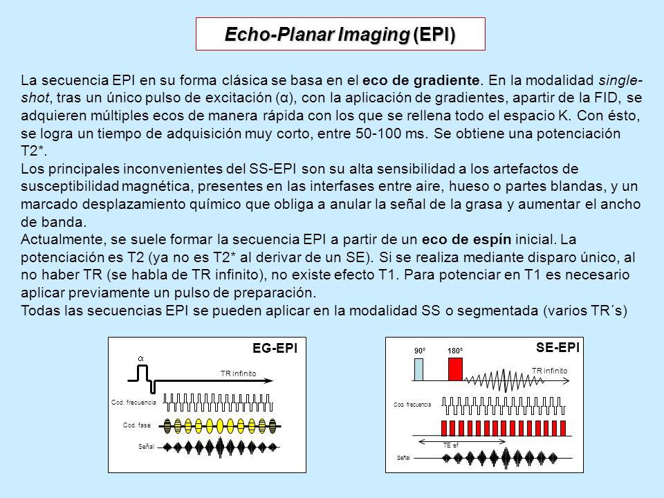 Echo-Planar Imaging (EPI) La secuencia EPI en su forma clásica se basa en el eco de gradiente. En la modalidad single- shot, tras un único pulso de ex